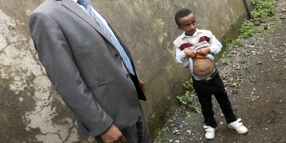 Alazar Angaw Getahun, 7, showing the scars on his stomach after several surgeries in Addis Ababa, Ethiopia. (Andrew McChesney / Adventist Mission)