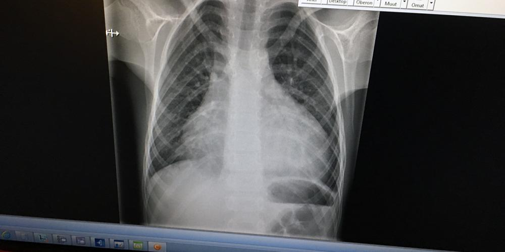 An X-ray image of 8-year-old Alex's heart, swollen twice its normal size, when he was rushed to a hospital in Finland on a hot summer evening in 2018. (Adventist Mission)